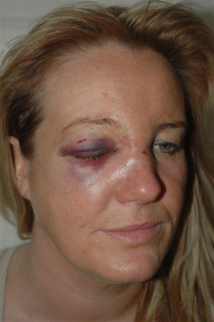 Kelly Jordan after the attack